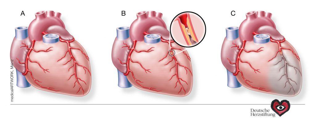 Grafik Herzinfarkt. Quelle: Deutsche Herzstiftung